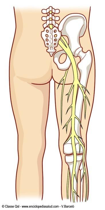 donde comienza el nervio ciatico