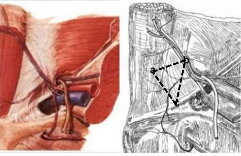 diferencia entre hernia inguinal indirecta y directa